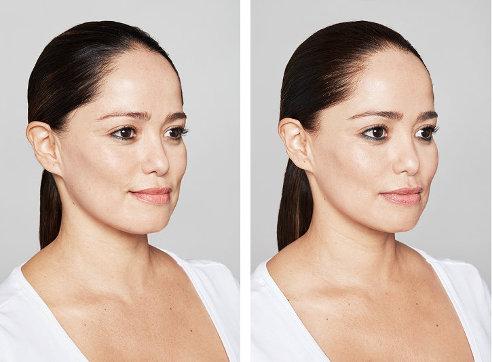 Rejuvenecimiento Facial con Restylane Vital (Skinboosters)
